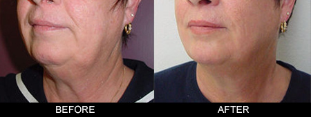 Medilift before-after